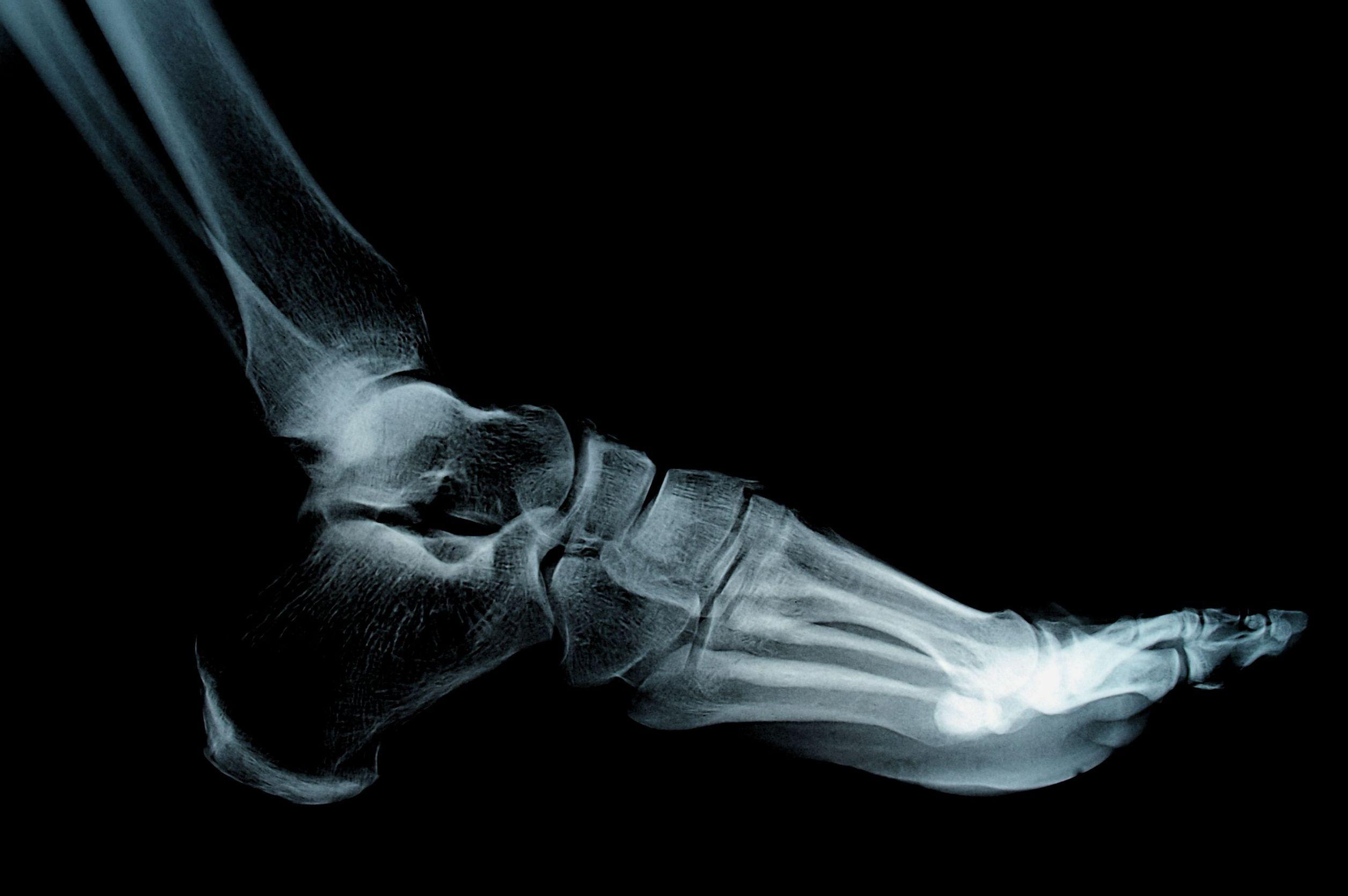 Cinci ore de aşteptare la Urgenţe, în Craiova, pentru o radiografie. Aparatul vechi din 1970 s-a defectat