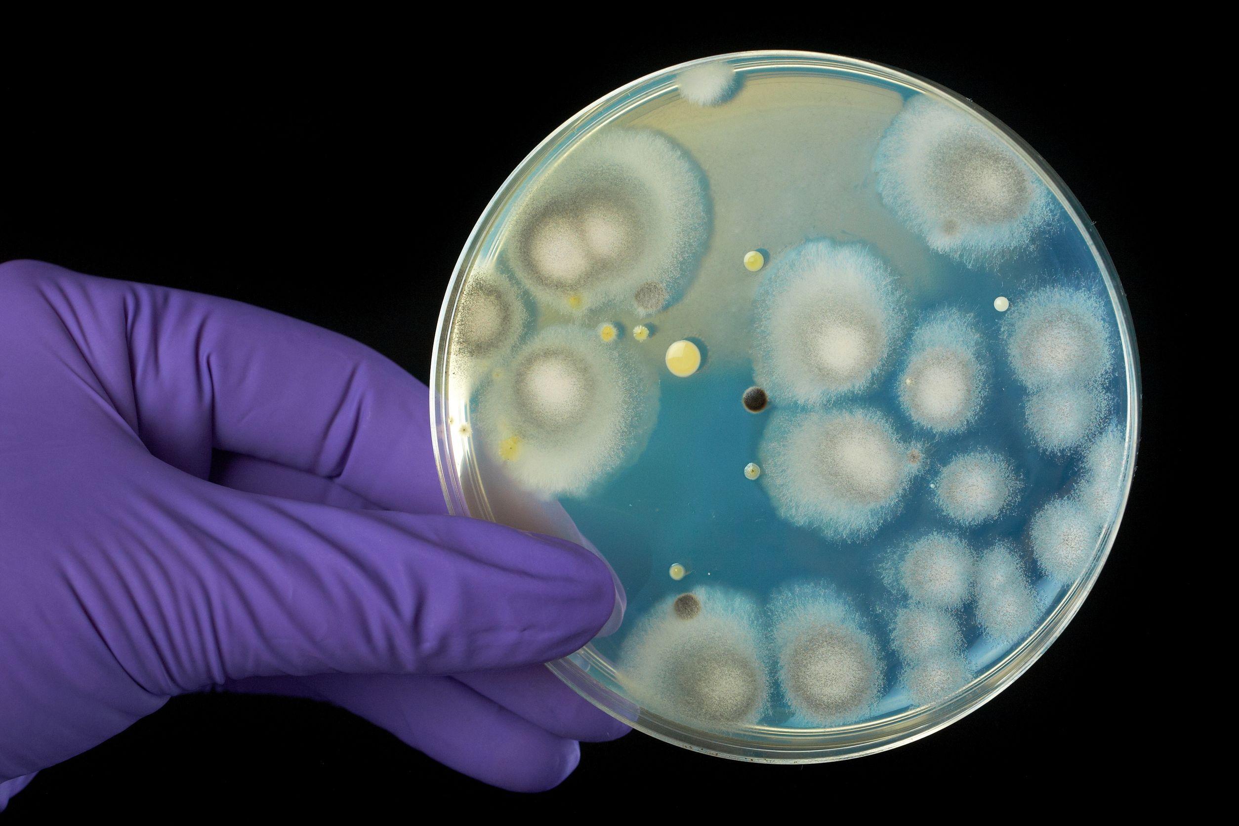 O nouă familie de antibiotice, descoperită în sol. Compuşii naturali care pot vindeca maladii grave