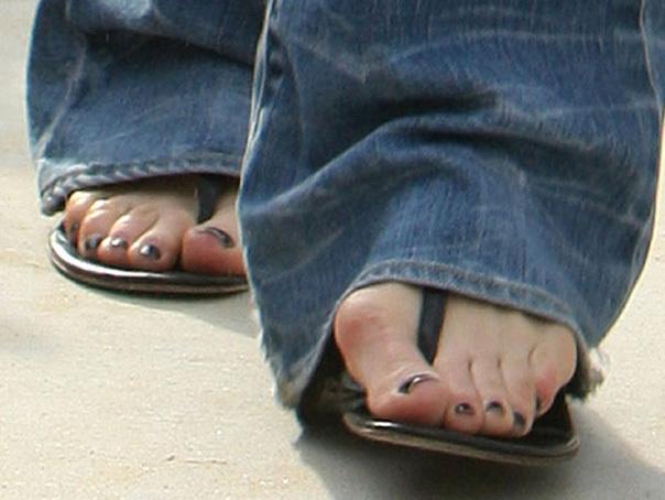varicoză goală degetul pe picior preparate pentru medicamente pentru tratamentul varicelor