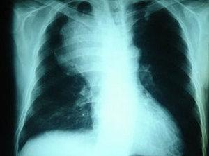 Predispoziţia genetică vinovată de apariţia cancerului pulmonar, identificată de cercetători