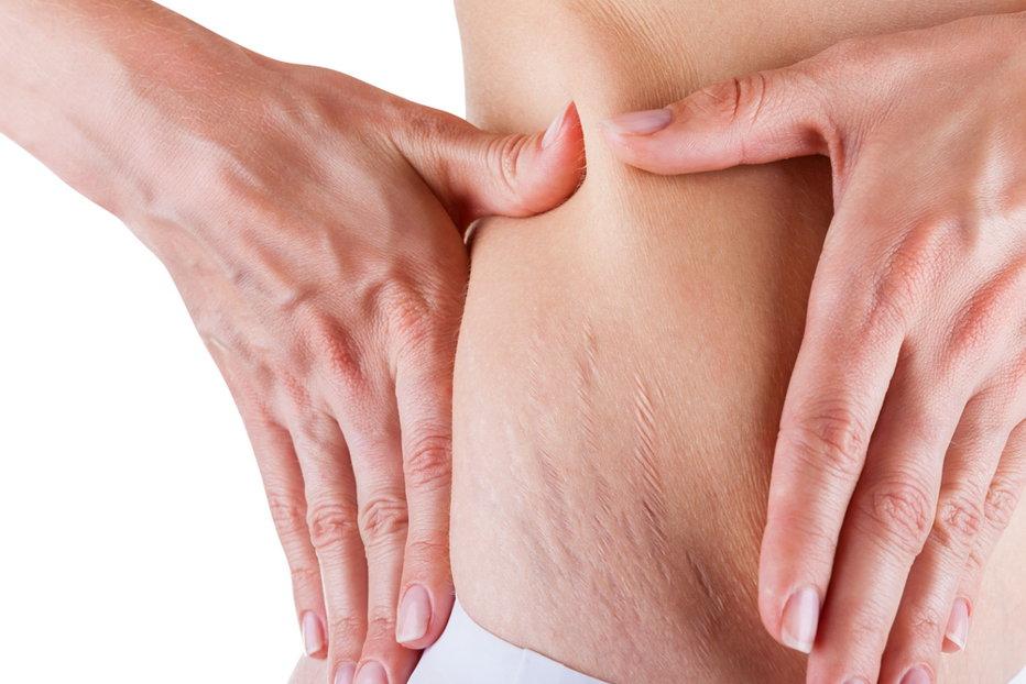 Ce afecţiuni determină uscarea pielii