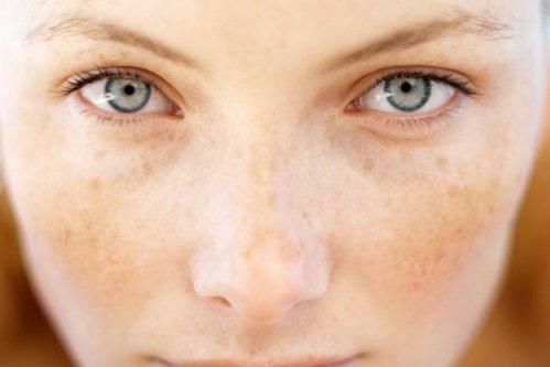 De ce apar petele pigmentare