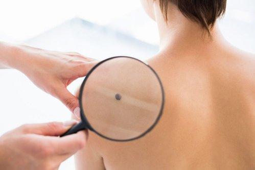 Confundate cu aluniţele, excrescenţele pielii pot trăda afecţiuni grave