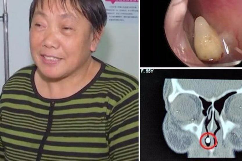 O femeie a avut simptome de răceală timp de mai multe decenii. Când a ajuns la spital, medicii au făcut o descoperire bizară