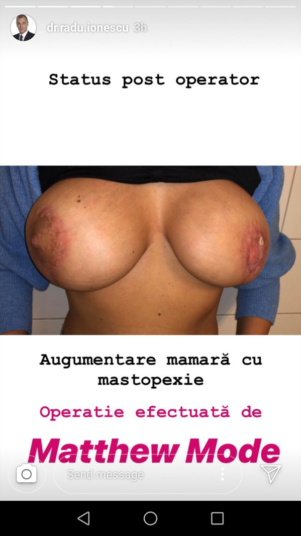 Imaginea unei femei mutilate după o operaţie a lui Matteo Politi