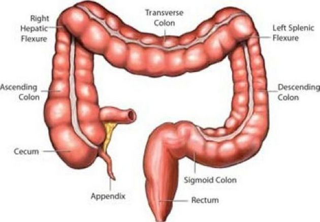 diverticuloza intestinala