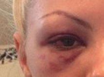 Alexandra Stan bătută. Tatăl artistei: