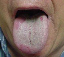 Uita-te la limbă şi află de ce boli suferi. Ce înseamnă când limba e albicioasă şi acoperită cu un înveliş