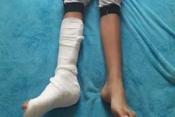 IGNORANŢA face noi victime. Un băiat şi-ar fi RUPT piciorul pe terenul plin de GROPI de la şcoală. Un copil în stare gravă după ce a căzut de la etajul doi al unei şcoli din Constanţa