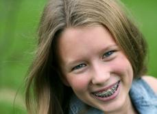 SMILE, proiect cu vouchere de la Primărie pentru copiii care au nevoie de APARAT DENTAR. Ce trebuie să facă părinţii pentru a BENEFICIA de sprijin
