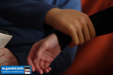 Românul care poartă cea mai scumpă mână bionică – ce bancuri face pe seama mâinii sale false