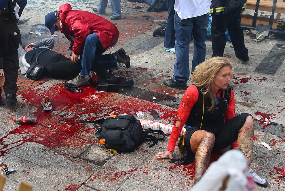 Persoane rănite aflate în stare de şoc aşteaptă să fie tratate, aproape de scena primei explozii, în Boston, luni, 15 aprilie 2013.