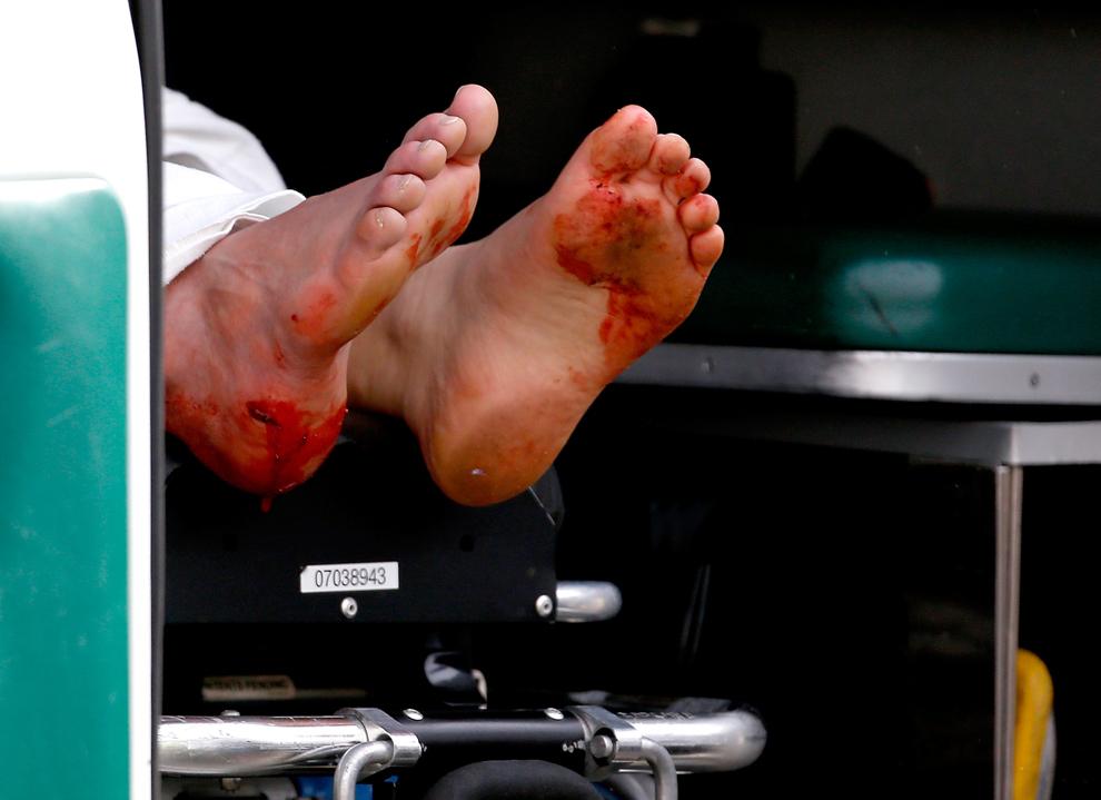 Picioarele pătate cu sânge ale unui bărbat atârnă în afara unei tărgi aflate într-o ambulanţă, aproape de locaţia primei explozii de la linia de sosire a celui de-al 117-lea Maraton Boston, luni, 15 aprilie 2013.