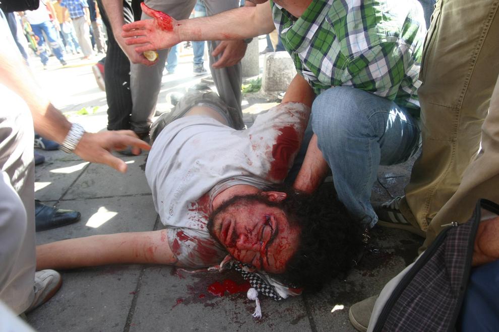 Persoane ajută un protestatar rănit în timpul luptelor de stradă cu forţele de ordine, în Ankara, Turcia, sâmbătă, 1 iunie 2013.