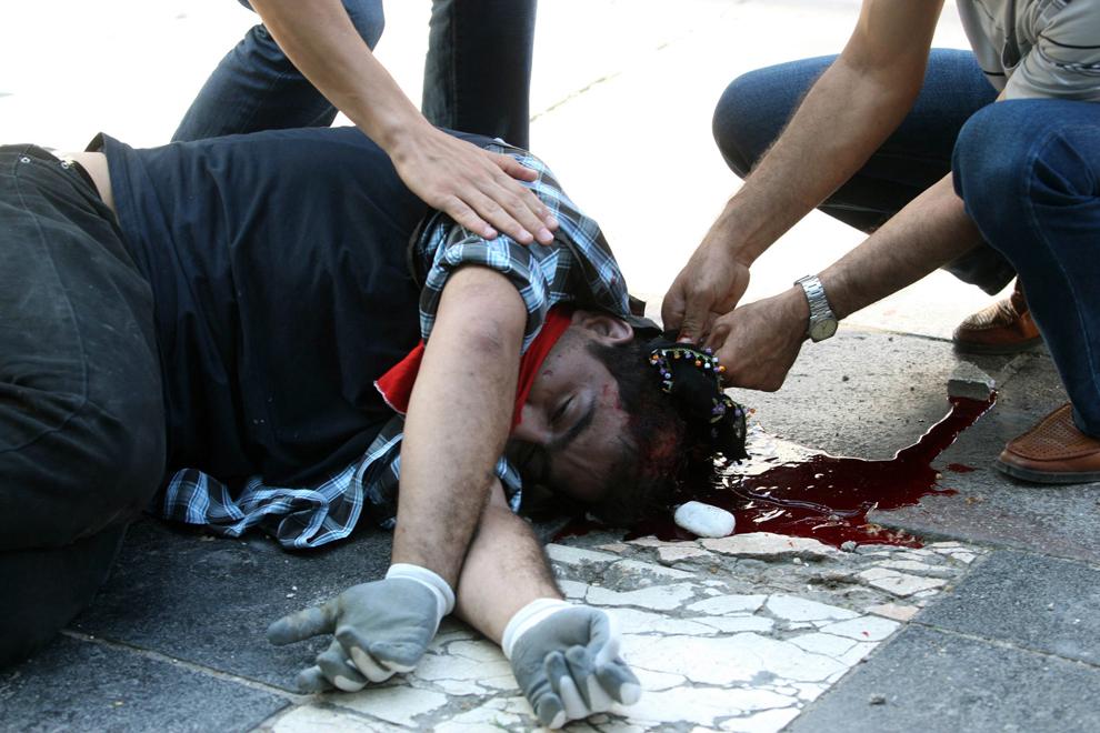 Un bărbat rănit este întins pe trotuar în timpul unui protest, în Ankara, Turcia, sâmbătă, 1 iunie 2013.