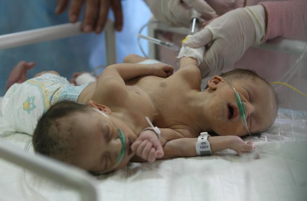 Gemenele siameze palestiniene Iman şi Amani Breiwesh primesc un tratament în interiorul secţiei nou-născuţi a spitalului Alia din Hebron, în Cisiordania, luni, 3 iunie 2013. Mama gemenelor a primit permisiunea autorităţilor israeliene să nască la spitalul Hadassah din Ierusalim, însă, potrivit medicilor israelieni, fetele s-au născut cu un singur stomac şi două inimi legate într-un singur organ.