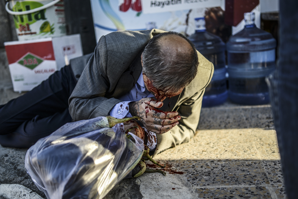 Un bărbat kurd sângerează după ce a fost ranit, în timp ce mergea în centrul oraşului Suruc, în timpul unor lupte între protestatari şi jandarmi turci, după ce autoritaţile turce au închis temporar graniţa din oraşul sud-estic Suruc, provincia Sanliurfa, Turcia, luni, 22 septembrie 2014.