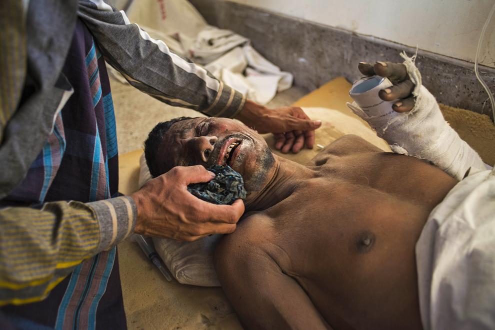 Unui muncitor rănit într-un accident de muncă ce a avut loc la o fabrică de ciment  îi este ştearsă faţa, la spitalul Khulna din Bangladesh, joi, 12 martie 2015.