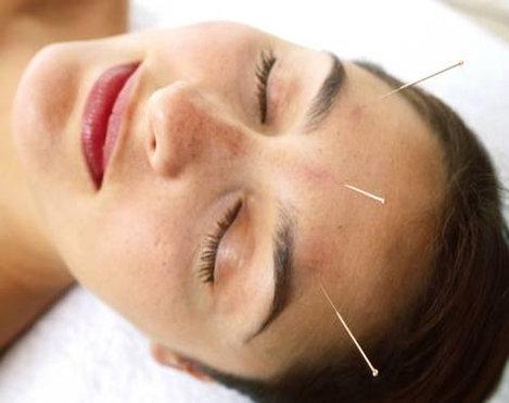 Acupunctura revitalizeaza viata sexuala