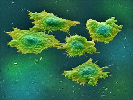 Oamenii de stiinta aduc celulele canceroase sub controlul normal