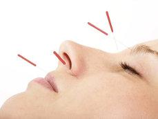 Cum iti ajuta acupunctura viata sexuala?