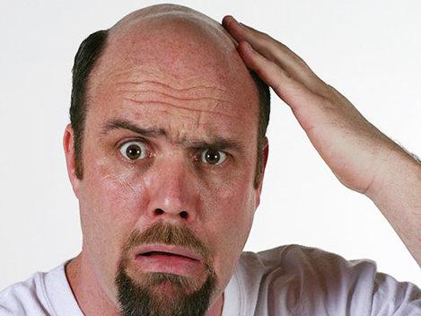 De ce î�i pierd b�rbaţii p�rul din cap?
