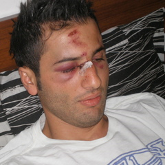 Racaj Berat, chelnerul agresat de Adrian Mutu