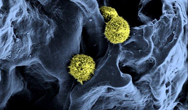 Măduva osoasă artificială – tratamentul revoluţionar care ar putea vindeca leucemia
