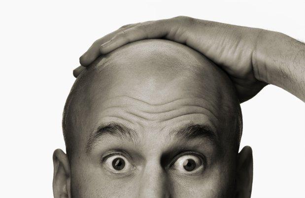 La ce ar renunţa bărbaţii dacă ar putea să-şi redobândească părul