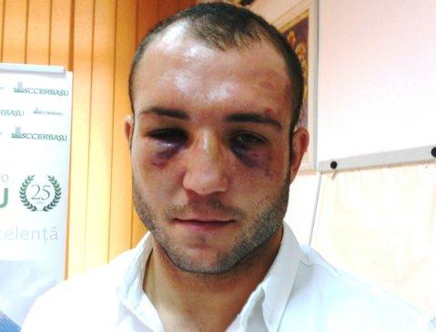 Mihai Nistor, oprit de medicii AIBA să boxeze la Mondiale. România, pentru prima dată în istorie fără niciun reprezentant la CM