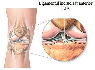 cremă pentru durere și articulații artroza de gradul 1 al tratamentului articulației genunchiului