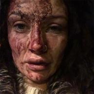 FOTO ŞOCANT! A fost DESFIGURATĂ CU BĂTAIE de iubitul ei! Nici medicii n-au recunoscut-o din cauza vânătăilor