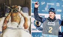 Şi-a rupt 17 oase, a avut splina ruptă şi nu putea vorbi. La 11 luni după ce a suferit un accident groaznic, un canadian a luat bronz la PyeongChang   JO 2018
