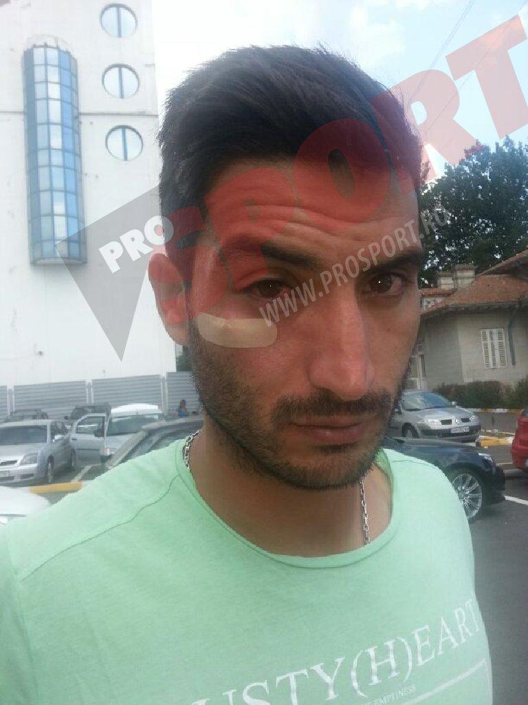 """Hamza, bătut de bodyguarzii lui Radu Mazăre! Reacţia primarului, surprinzătoare: """"Era agresiv, poate drogat. Nu ştiu dacă a fost lovit!"""" FOTO EXCLUSIV"""