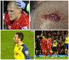 FOTO şi VIDEO | Un meci cu de toate. Arsenal - Liverpool a avut accidentări horror, un fotbalist eliminat şi multe glume la final. Ce au inventat fanii despre Borini şi Cazorla