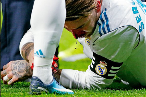 FOTO | Cum arată nasul lui Sergio Ramos după meciul cu Atletico Madrid