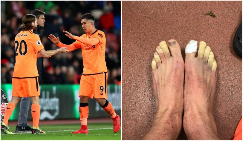 Unui fotbalist de la Liverpool i-au îngheţat picioarele în partida cu Southampton. Cum a fost posibil | FOTO