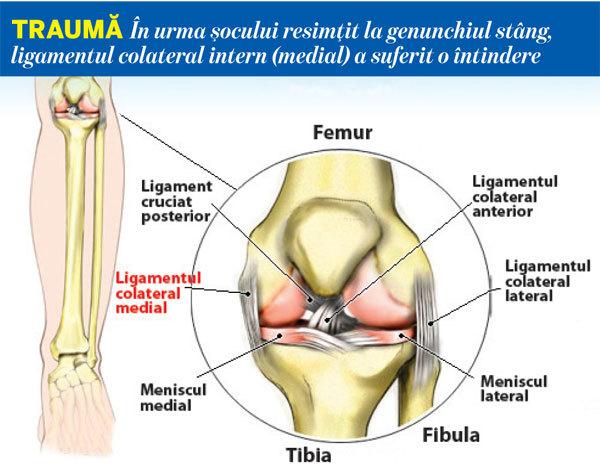 refacerea ligamentului colateral medial al șocului după alergare, articulația șoldului doare