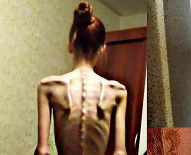 FOTO | Cazul incredibil al unei tinere de 18 ani. În 2014, era anorexică şi cântărea DOAR 32 de kilograme! Acum, este antrenoare de fitness şi arată uimitor