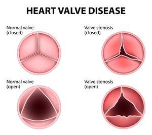 stenoza valvulara aortica