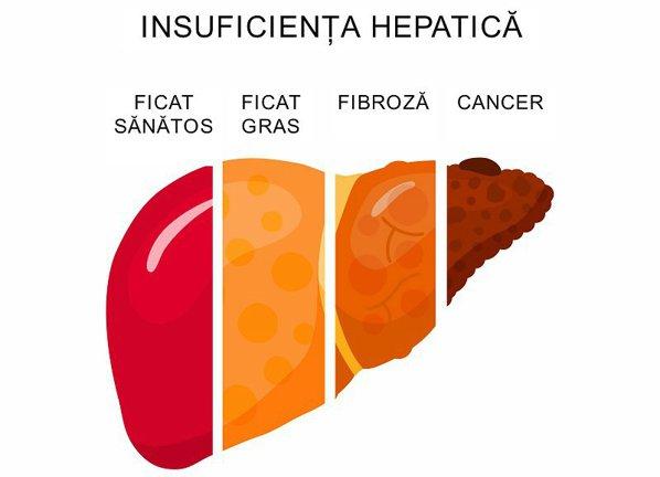 Insuficienta hepatica: ce cauze are, cum se manifesta & tratament