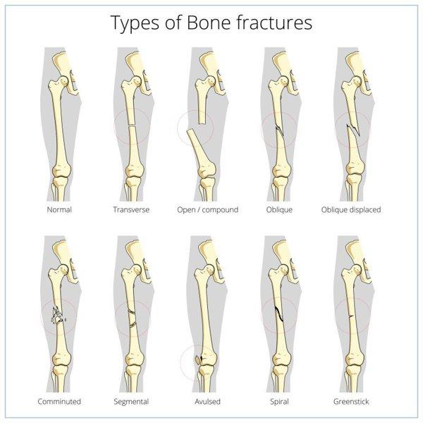 osteoporoza dex artrita articulației umărului