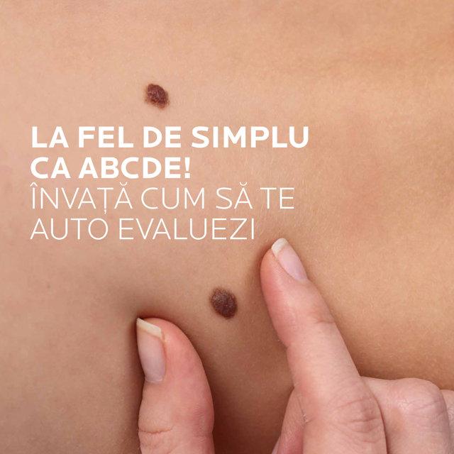 Cancerul de piele este unul dintre cele mai diagnosticate cancere din lume. Care este cea mai eficientă metodă de prevenire a melanomului?