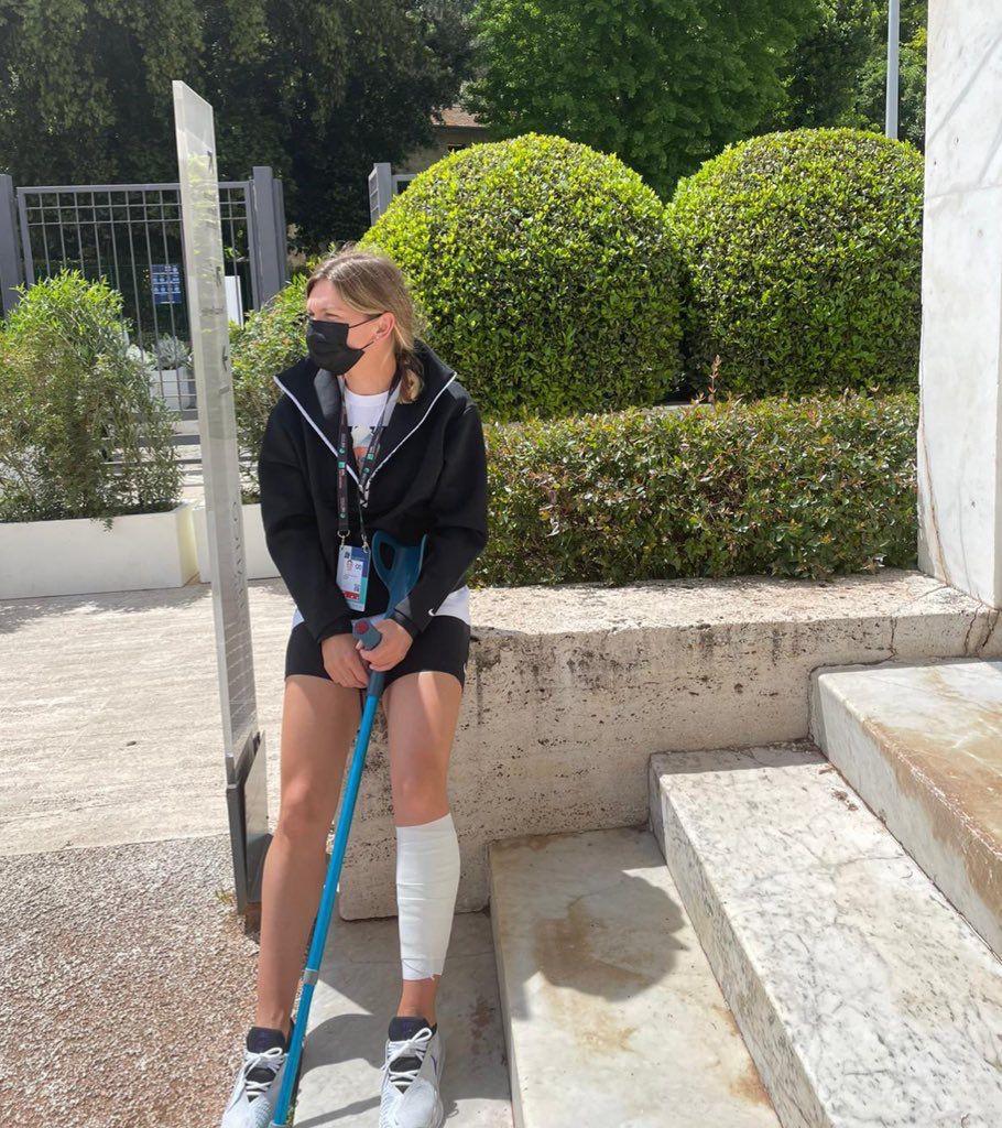 Simona Halep publică rezultatul RMN-ului: O mică ruptură musculară la gamba stângă
