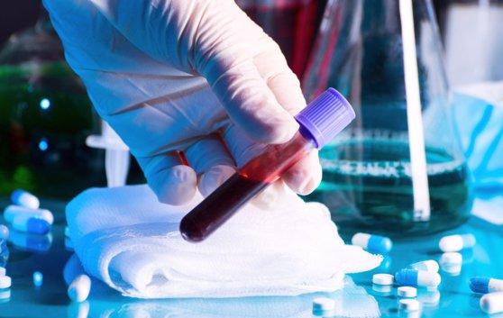 FT: O companie elveţiană poate produce aparate care să efectueze peste 30 de milioane de teste coronavirus