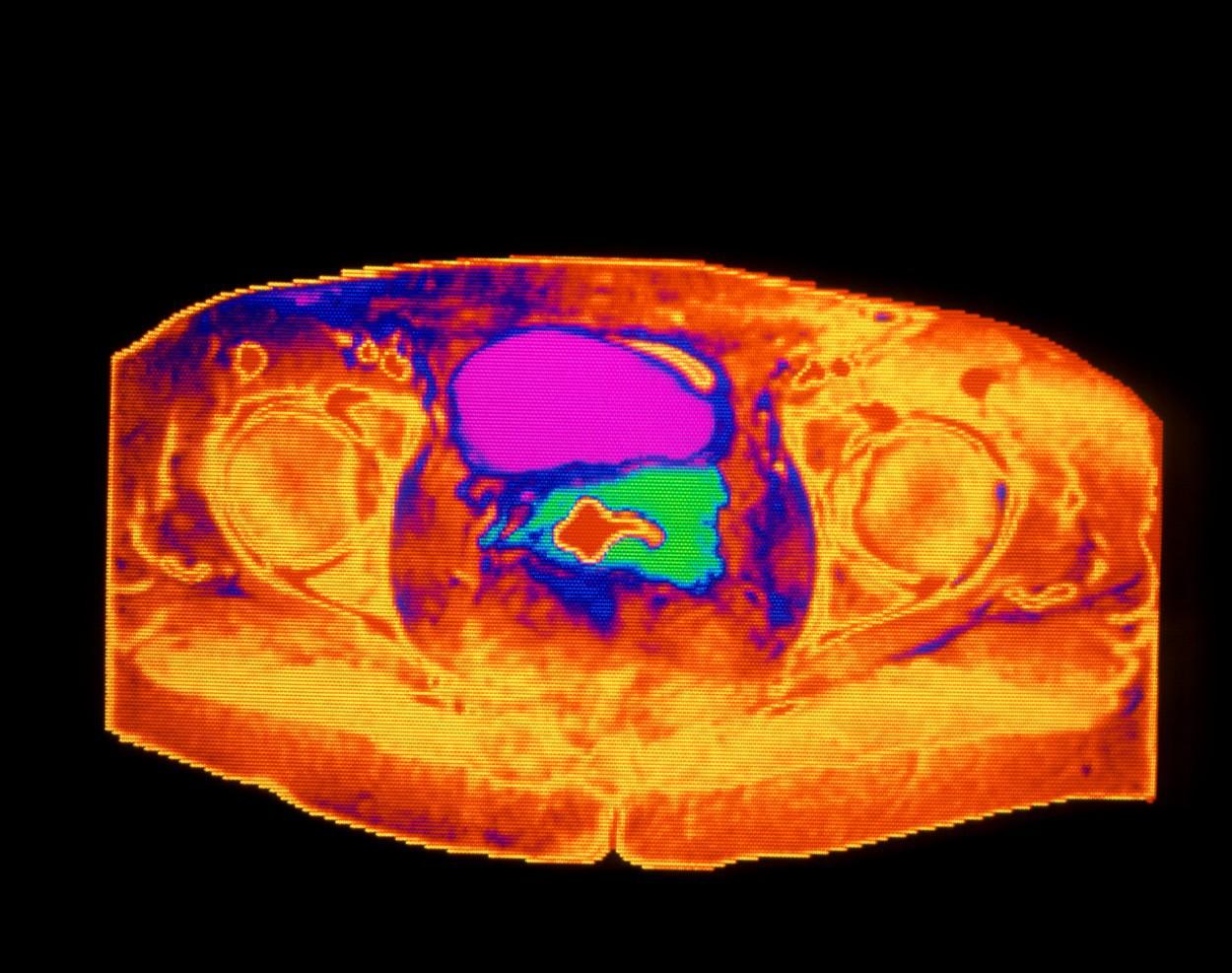 Cancerul de col uterin ar putea fi eradicat în Anglia. Măsurile care au contribuit la reuşita autorităţile britanice