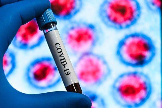 """Autorităţile interzic vânzarea testelor antigen rapide pentru depistarea COVID în farmacii, dar lasă nereglementat comerţul online. Medic: """"Sunt pacienţi care se testează la domiciliu, dar testele rapide nu sunt raportate"""""""